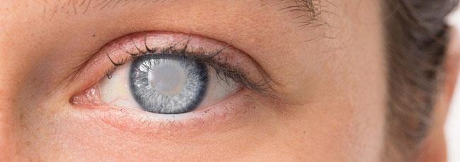 Quels sont les traitements de la cataracte